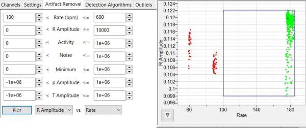 ECG Artifact Detection