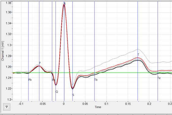 ECG points Marked on the graph