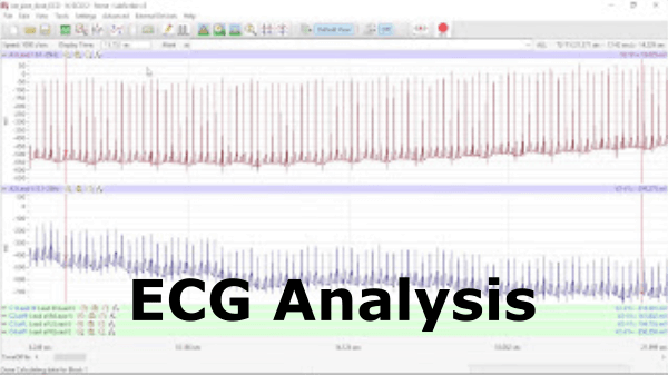 ECG Analysis Video