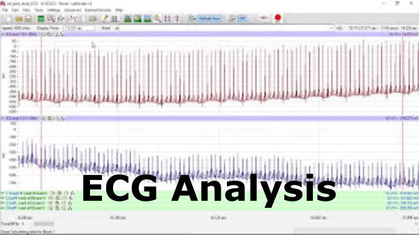 ECG Analysis Video