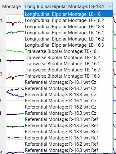 EEG montages