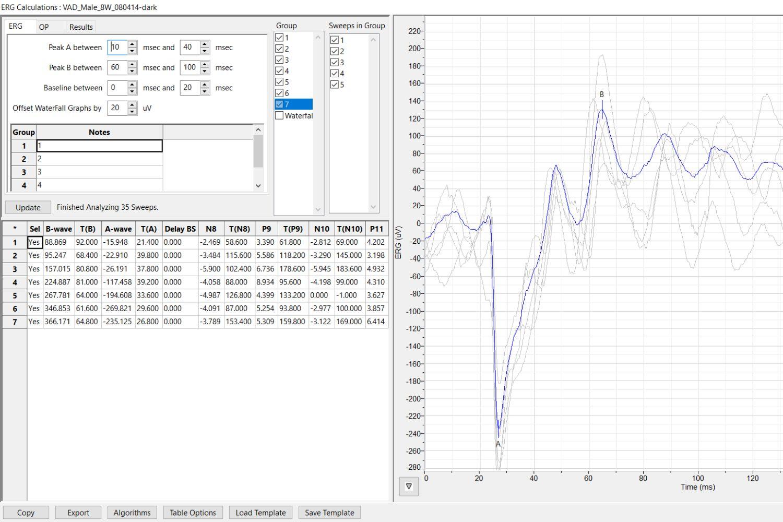 ERG analysis Module