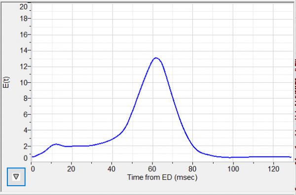 PVloops: E(t) vs Time