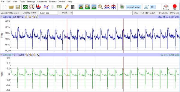 Neonatal Mouse ECG